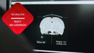 Neuralink przenosnepl mózg człowieka obraz tomografia